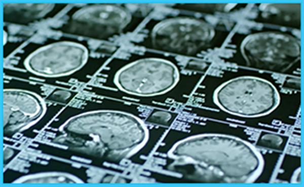 Scientists at KU Alzheimer's Disease Center Make Progress on Research